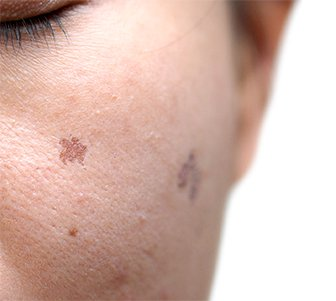 PicoSure Skin Pigmentation - Dr Saras & Co Sydney