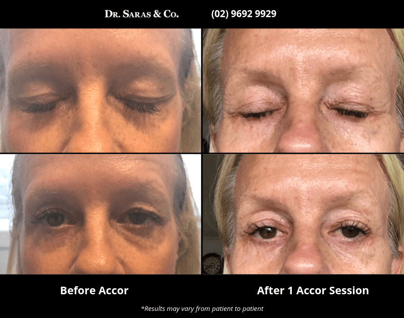 Sydney Plasma Pen eye bag lid lift alternative to surgical blepharoplasty